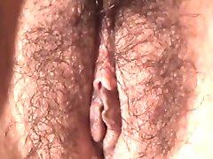 organele genitale externe