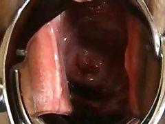 Japanese Extreme EW cervix, speculum, close-up