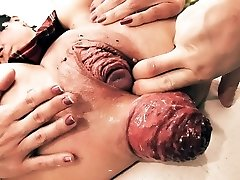 Insanely Huge Prolapse! Cervix Exposure. Eggplant Penetratio