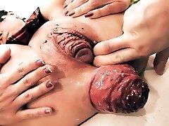 Insanely Huge Prolapse! Cervix Exposure. Eggplant Penetratio