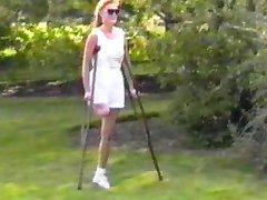 Debbie protéze
