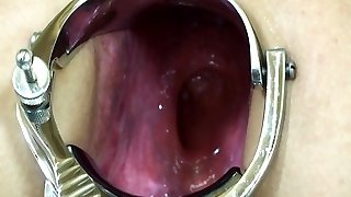 Elmer wife extreme rectal speculum play