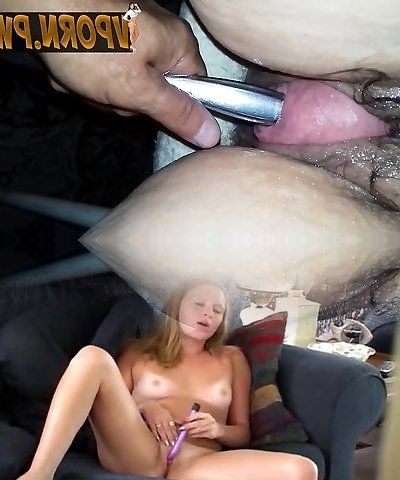 Granny prolapse and cervix insertion